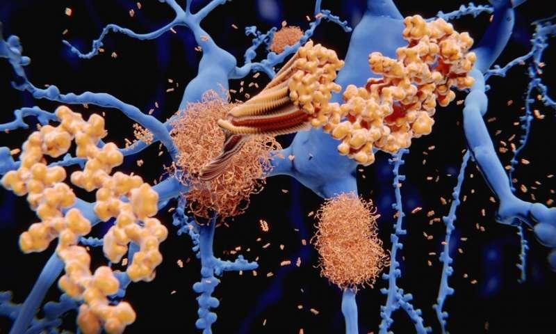 https://nfusion-tech.com/wp-content/uploads/2020/03/gold-nanoparticles-uncover-amyloid-fibrils_5e6b4430669a5.jpeg