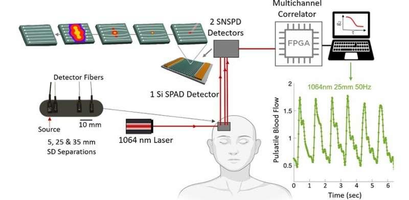https://nfusion-tech.com/wp-content/uploads/2021/08/superconducting-nanowire-single-photon-detectors-next-bigthing-in-blood-flow-measurement_611f7b62b9668.jpeg