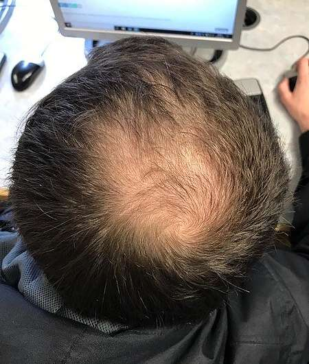https://nfusion-tech.com/wp-content/uploads/2021/08/treating-the-root-cause-of-baldness-with-a-dissolvablemicroneedle-patch_6116400d0596b.jpeg